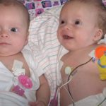Twin baby Girls fights for life