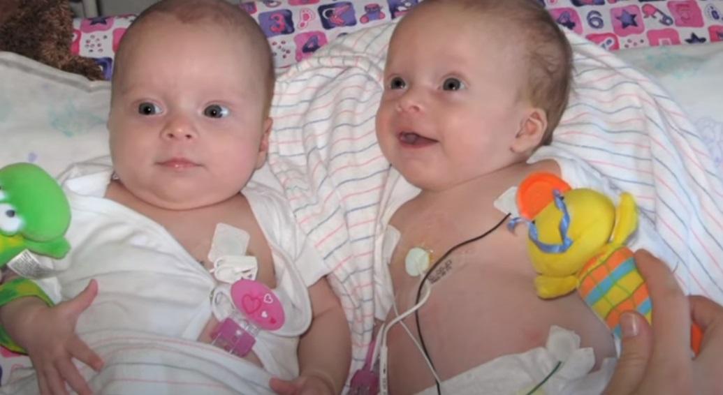 Birth, Girls, Twin, Health, Story, Mother,
