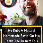 Genius Homemade Paste for Teeth whitening